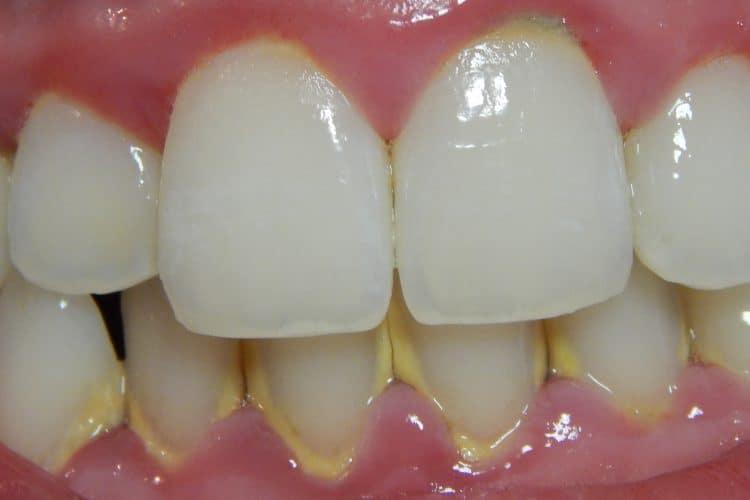 Qué causa el sarro en los dientes