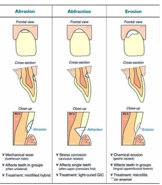 infografia abrasion
