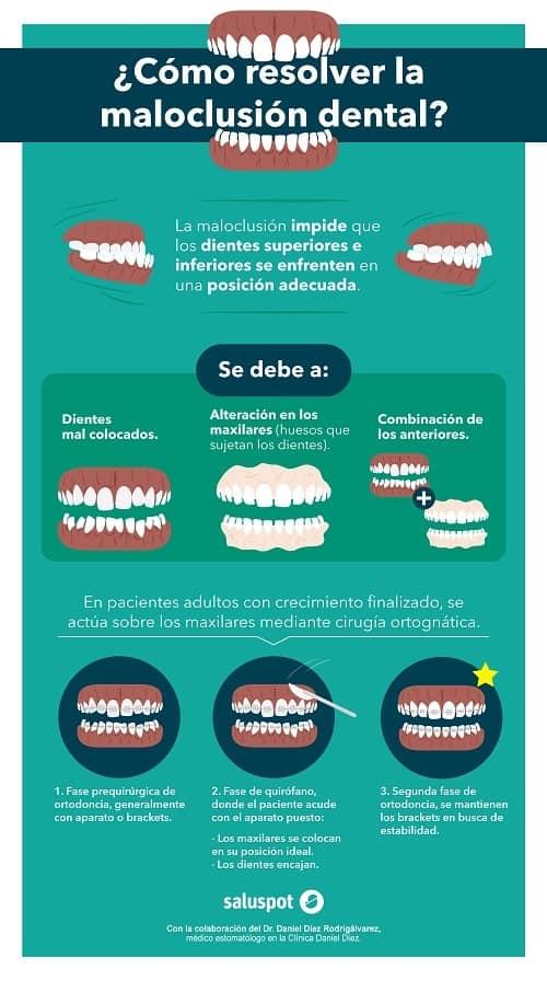 Qué es la cirugía ortognática #infografia