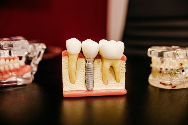 rehabilitacion dental