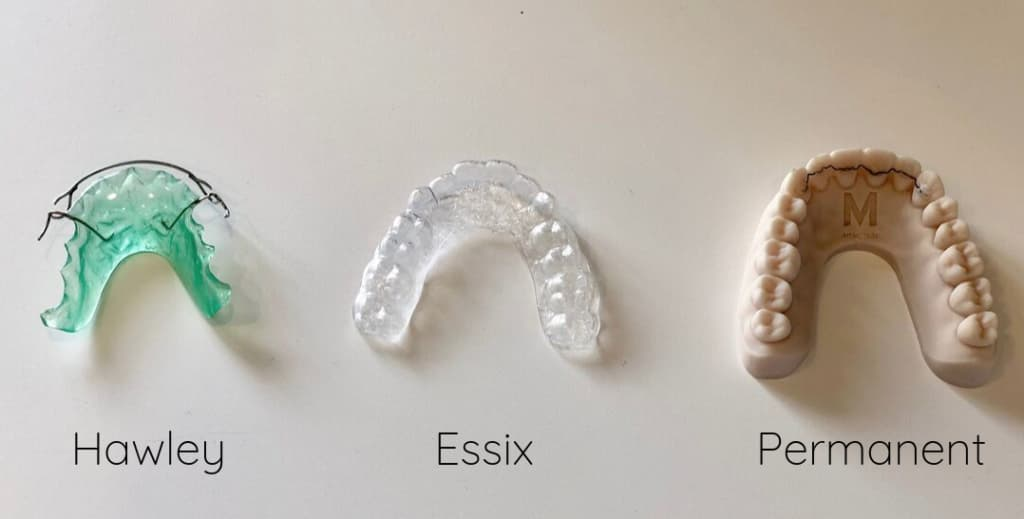 tipos de retenedores dentales