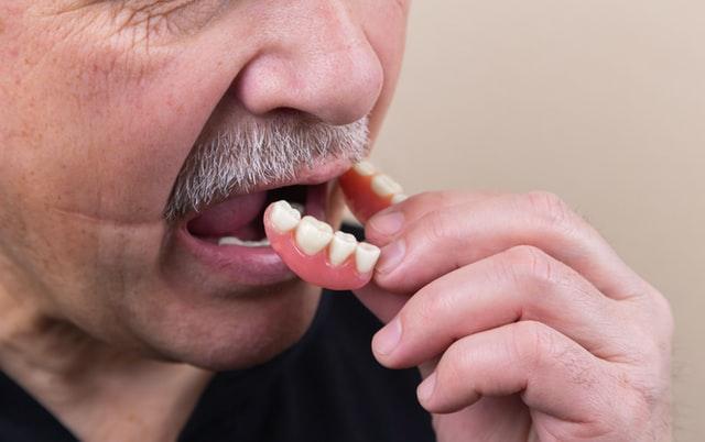 enfermedades causadas por los implantes dentales