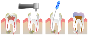 procedimiento endodoncia