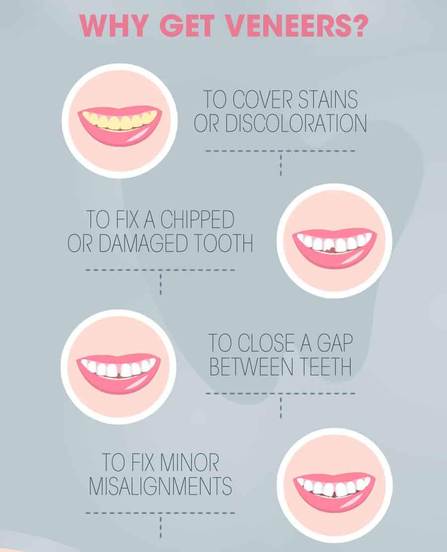 por que usar carillas dentales