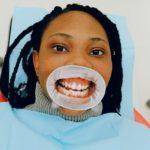 blanqueamiento dental por fotoactivacion