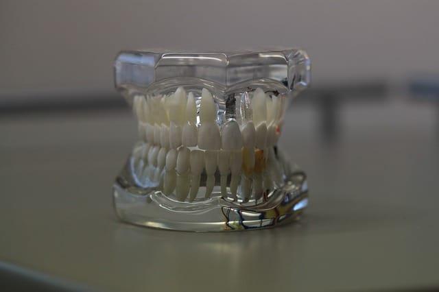 como se coloca un implante dental