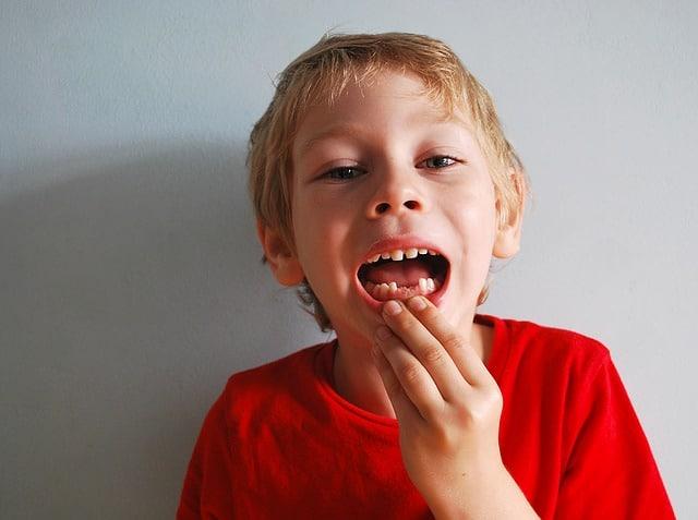 cuando se caen los dientes de leche en los niños