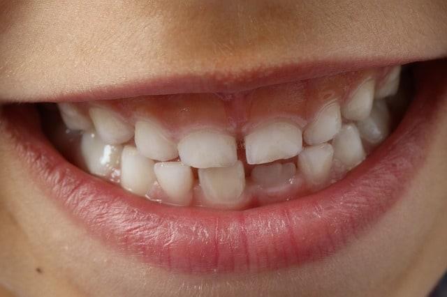 dientes oscuros niños