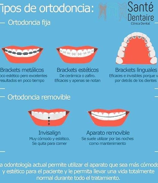 cómo lucir una sonrisa bonita con brackets #infografía