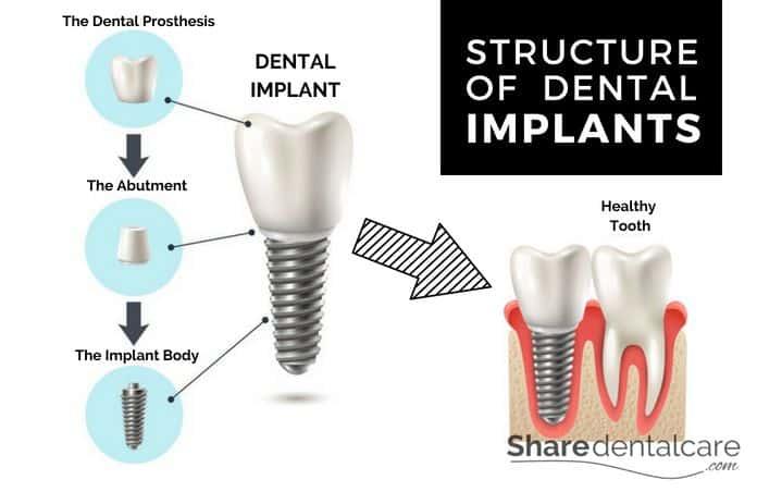 estructura de un implante dental infografia