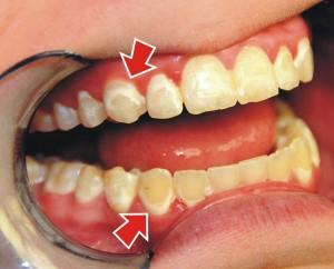 ejemplo descalsificacion dental