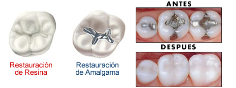 resina dental y amalgama