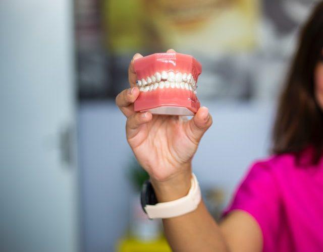 en que consiste el curetaje dental