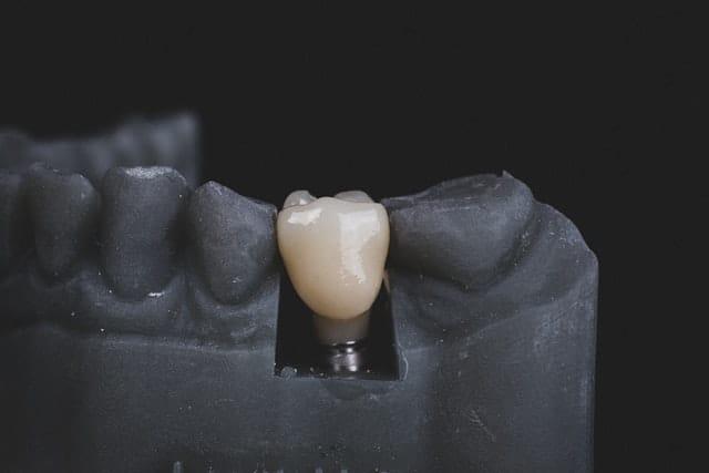 Que provoca la caida de los dientes