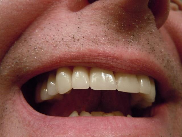 que es la hipoplasia del esmalte dental