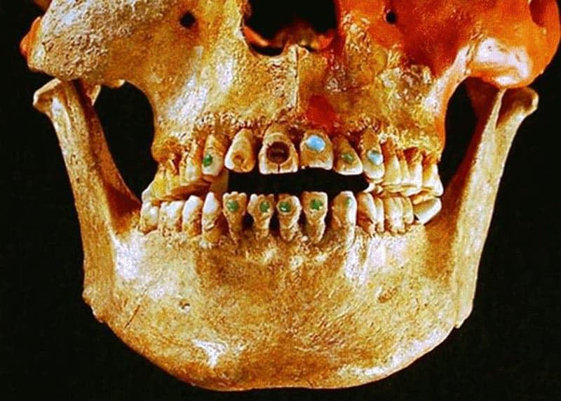 historia-de-la-odontologia